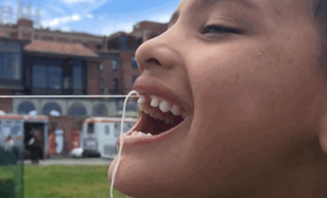This Little Guy Got His Tooth Pulled Out By A Drone And It's Totally Awesome | Drones | Scoop.it