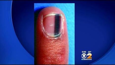 Doctors Warn Of Potentially Deadly Form Of Nail Cancer | Podiatry and Dermatology News | Scoop.it