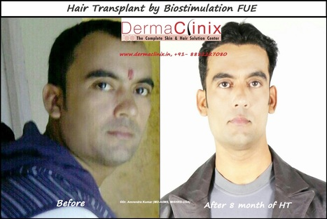Hair Transplant Surgeon in Delhi | DermaClinix - The Complete Skin & Hair Solution Center | Scoop.it