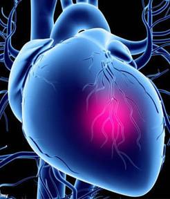 Kalp Krizi Nedir? - Medical Park Kardiyoloji Kliniği | kalp damar | Scoop.it