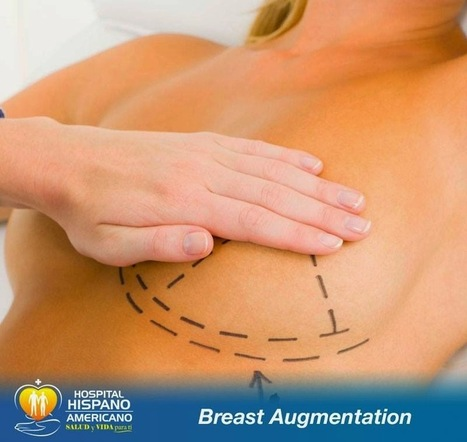Plastic Surgery in Mexicali Mexico at Hispano Americano Hospital: You are having Breast Augmentation Surgery in Mexicali: Silicone or Saline based implants? | Plastic Surgery Center | Scoop.it