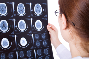Traumatic Brain Injuries during a  Car Accident | Personal Injury Attorney | Scoop.it