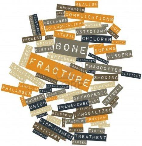 A Revolutionary Treatment for Burns & Bone Fractures | PRNewswire | Dental Implant and Bone Regeneration | Scoop.it