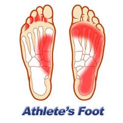 Un traitement naturel pour soigner le pied d'athlète | aloes ou aloe vera | Scoop.it