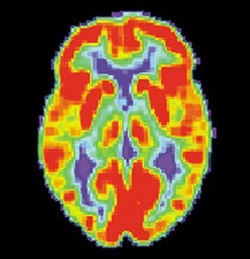 Neuroimaging Study Pinpoints Neurobiological Basis for Key Symptoms Associated with PTSD | Social Neuroscience Advances | Scoop.it