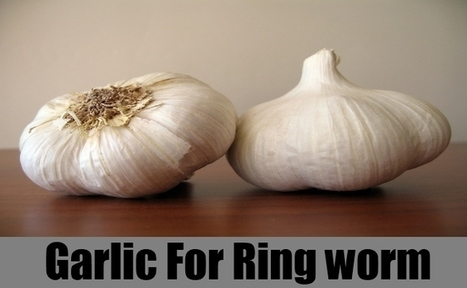 Use Garlic to Treat Ringworm | Making Your Own Home Remedies | Scoop.it