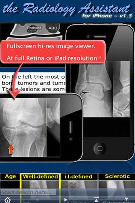 Tecnicos Radiologos: Aplicación: Asistente de Radiología | LA TELERADIOLOGIA COMO AYUDA DIAGNOSTICA | Scoop.it