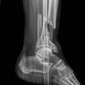 Une percée médicale israélienne : traitement des fractures par des ... - siliconwadi.fr | SAVE YOUR HEART | Scoop.it