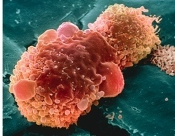 Lists of cancer mutations awash with false positives | Biosciencia News | Scoop.it