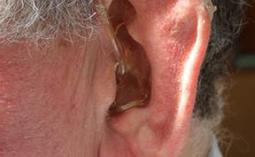 Rheumatoid arthritis does not increase hearing loss risk - Toronto NewsFIX   Hearing News   Scoop.it