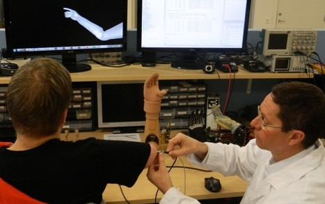 Osseointegrated prosthetic arm controlled via direct nerve implants | Nouvelles IHM | Scoop.it
