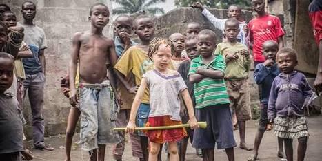 Les albinos de RDC entre ombre et lumière | Continent africain | Scoop.it