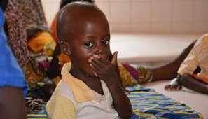 Niger-RDC : deux exemples des ravages de la malnutrition en Afrique | Questions de développement ... | Scoop.it