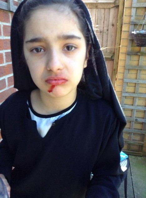 A 9 years old girl run from foster care with blood in her face | family justice exposed | SocialAction2014 | Scoop.it