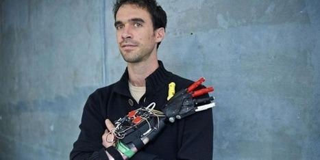 Amputé, il fabrique sa propre main... grâce à une imprimante 3D | Kinésithérapie | Scoop.it