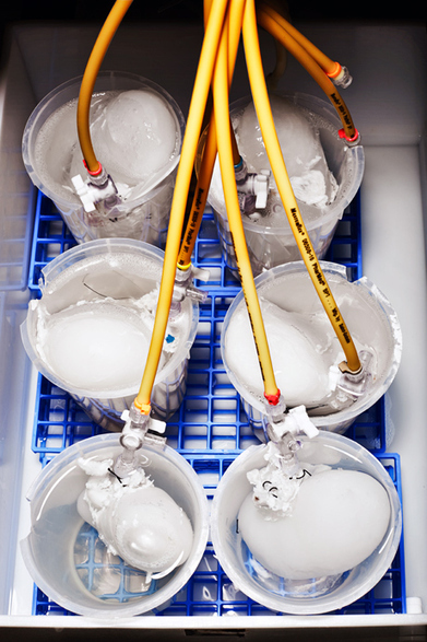 Whatever Happened to Stem Cells   Regenerative Medicine   Scoop.it