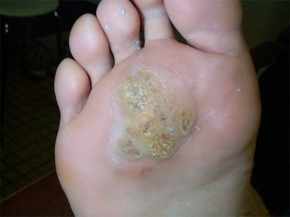 Le thrombus de la veine superficielle sur le pied de la photo