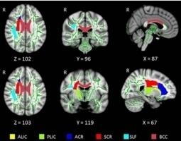 Insomnie : elle épuise les axones et la myéline | DORMIR…le journal de l'insomnie | Scoop.it