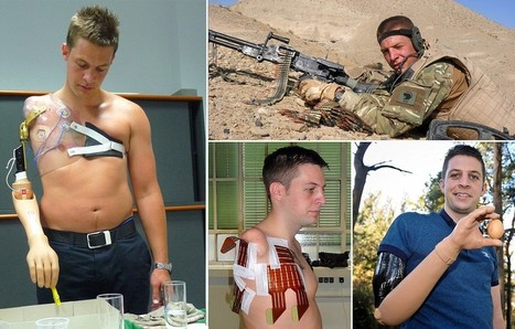 Soldier injured in Afghanistan becomes first Briton to be given bionic arm he can control with his BRAIN | Disruptive Innovation | Scoop.it