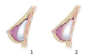 Pills and Creams for Natural Breast Enhancement | Should you believe in boob enlargement commercials? | Scoop.it