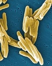 TUBERCULOSE: Déception en phase IIb d'un candidat vaccin chez le nourrisson  - The Lancet | Actualités Santé | Scoop.it