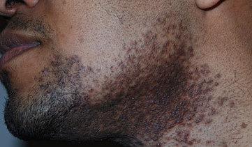 HOW TO PREVENT RAZOR BUMPS AND CUTS WHEN USING AN ELECTRIC SHAVER: | Circletrest | Scoop.it