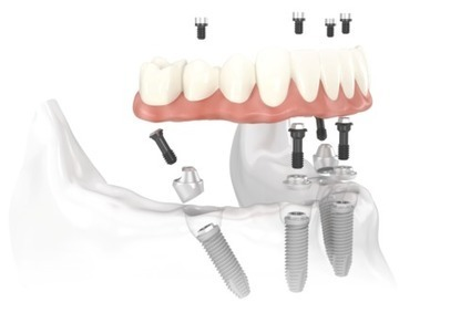 All-on-Four Dental Implants - New Teeth in One Day | Cheap and Best Hotels in the World | Scoop.it