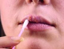 Mitos e Verdades sobre Câncer de Colo de Útero e HPV | Ginecologia e Obstetrícia | Scoop.it
