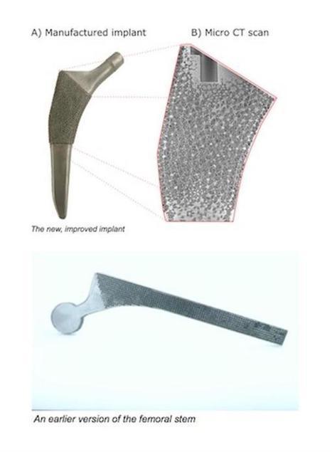3D printed titanium hips will last longer with less pain thanks to porous implants that mimick real bone   3D Printing & Health - Impression 3D & Santé   Scoop.it