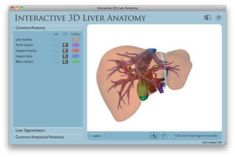 VIRTUAL Liver: 3D Liver Anatomy, Hepatic Segments, Surgery, Hepatobiliary, Couinaud, Education, Resident, Resection | Medic-e-learning case 3 (Dyspepsia) | Scoop.it