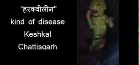 Kind of Unique Alien Baby Born in Chattishgarh! Its Green in Color and Red Eyes! | WONDER-WORLD-INDIA | Scoop.it