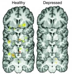 DÉPRESSION: Se secouer? Pas facile quand on est déprimé! | Info Psy | Scoop.it