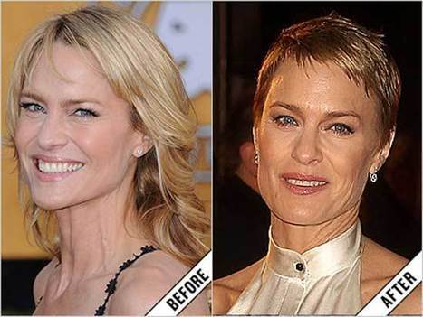 Robin Wright Plastic Surgery Before and After | Celebrity Plastic Surgery News | Scoop.it