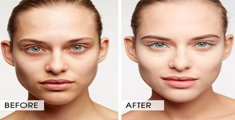Dermal Fillers for Under Eye Circle Treatment NYC Get Rid of Under Eye Circles or Black Under Eyes   Brow Lift Botox   Scoop.it