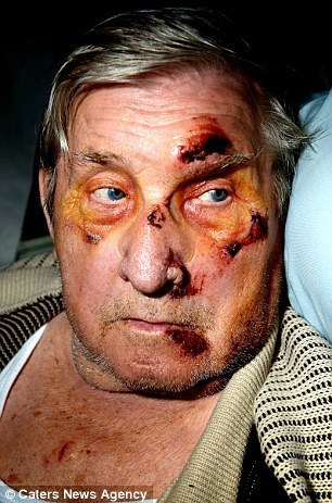 Horrific injuries of Korean War veteran, 81, who was beaten up by yobs when he told them to stop throwing fruit at his home | Focus World News - With Fillie Focus | Scoop.it