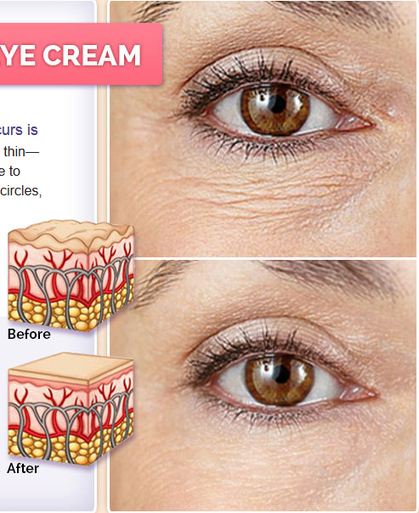 One Moment Essential Eye Cream Review - Ultimate Wrinkle Averting Formula! | The Age Defying Formula For Softer Skin! | Scoop.it