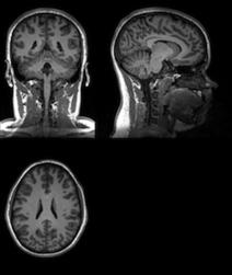 Les neuromythes constituent un obstacle au changement dans le domaine de l'éducation | Education et TICE | Scoop.it