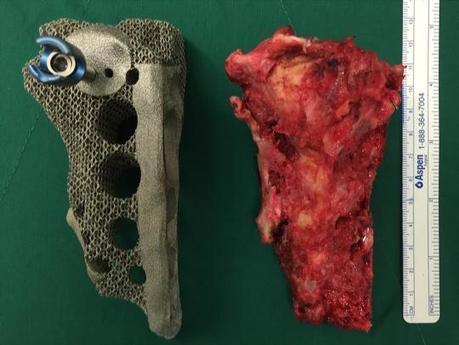 South Korea's First Ever 3D Printed Pelvic Implant Surgery Deemed a Success | 3D Printing and Model | Scoop.it