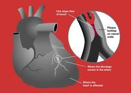Heart attack damage slashed with microparticle therapy | Amazing Science | Scoop.it