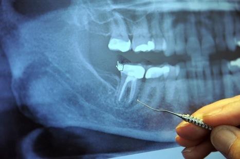 97% des malades atteints du cancer en phase terminale ont précédemment subi cette intervention dentaire - Santé Nutrition | La santé autrement et naturellement | Scoop.it