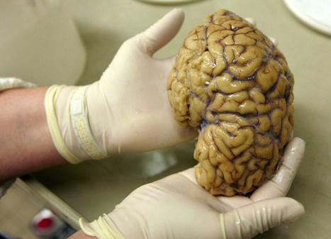 Pojan toinen aivopuolisko poistettiin – kielitaito kehittyi puolikkaillakin aivoilla | Psykologia, sen tutkimus ja soveltaminen | Scoop.it