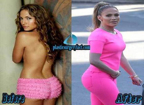 Jennifer Lopez Plastic Surgery Before and After Photos — Plastic Surgery Facts | Celebrity Plastic Surgery News | Scoop.it