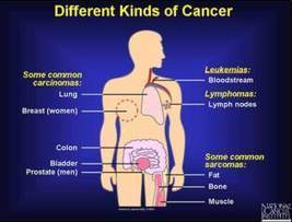 """What is """"CANCER"""" and it's """"TYPES"""" 