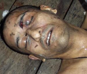 The torture of  Shaheed Muzafar Bhutto by PAK military agencies | Human Rights and the Will to be free | Scoop.it