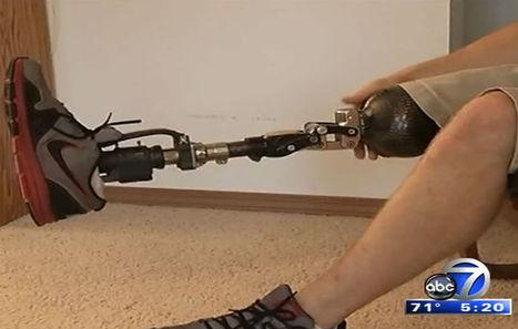 Mind-controlled prosthetics - WWSB ABC 7 | Orthopedic surgery | Scoop.it