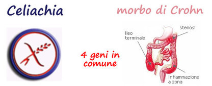 Celiachia e morbo di Crohn hanno 4 geni in comune | FreeGlutenPoint | Scoop.it