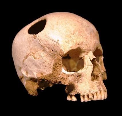 Roman Medicine | Ancient Health & Medicine | Scoop.it