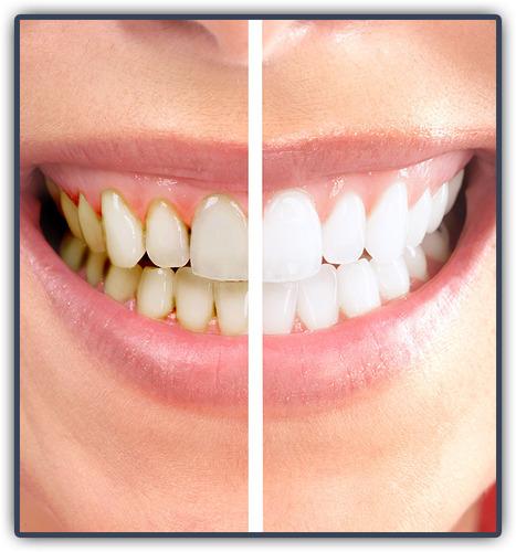 Stopping Plaque Buildup | Pediatric Dentist | Scoop.it