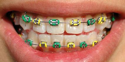 L'appareil dentaire, nouvel accessoire mode mortel des ados asiatiques   orthodontie   Scoop.it