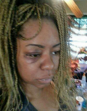 Beaten by police for staying on the phone | | SocialAction2014 | Scoop.it